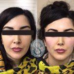 کلینیک ساعی - نمونه کارهای زاویه سازی صورت