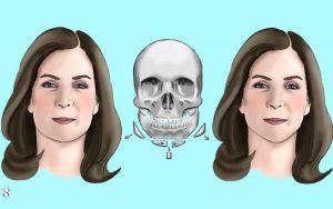 ساعی کلینیک - زاویه سازی صورت
