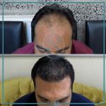 کلینیک ساعی – نمونه کارهای کاشت مو