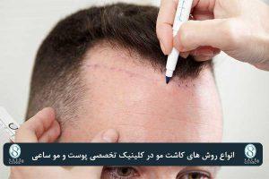 کلینیک ساعی – معجزه کاشت موی سر - انواع روشها