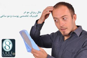 کلینیک ساعی – معجزه کاشت موی سر - علل