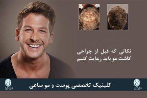 کلینیک ساعی – معجزه کاشت موی سر - نکات