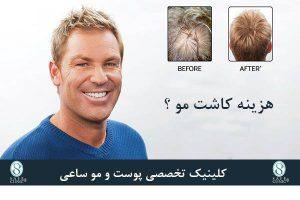 کلینیک ساعی – معجزه کاشت موی سر - هزینه