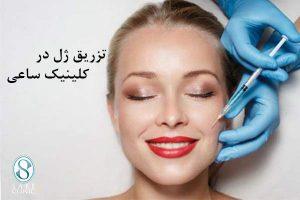 کلینیک ساعی – زاویه سازی صورت - هر آنچه که درباره زاویه سازی صورت(مادلینگ چهره)، باید بدانید - تزریق ژل