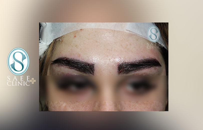 کلینیک پوست و مو ساعی – کاشت ابرو – گالری – بعد از عمل – 2