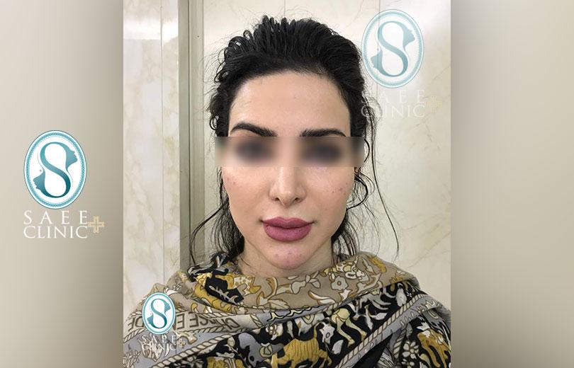 کلینیک پوست و مو ساعی – زاویه سازی صورت – گالری – بعد از عمل – 1