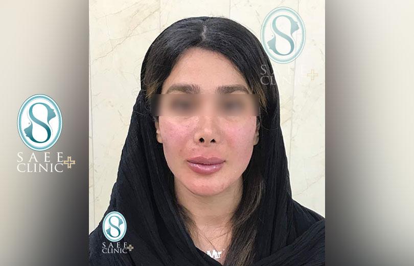 کلینیک پوست و مو ساعی – زاویه سازی صورت – گالری – بعد از عمل – 2