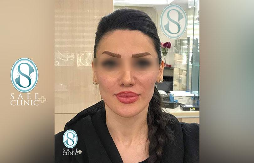 کلینیک پوست و مو ساعی – زاویه سازی صورت – گالری – بعد از عمل – 3