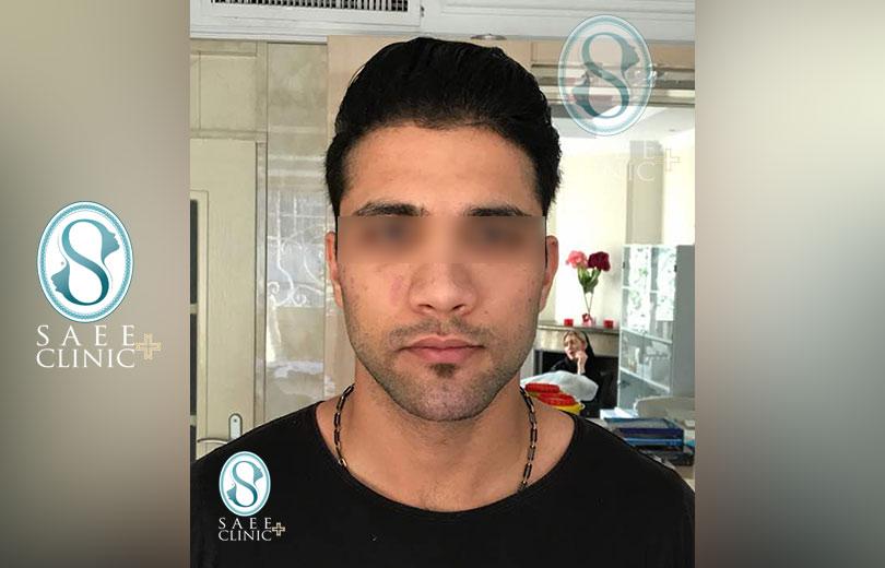 کلینیک پوست و مو ساعی – زاویه سازی صورت – گالری – بعد از عمل – 7