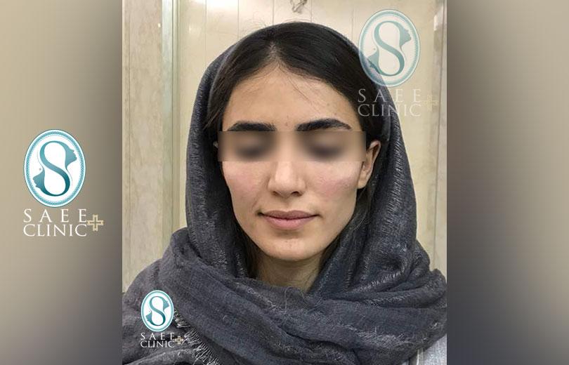 کلینیک پوست و مو ساعی – زاویه سازی صورت – گالری – بعد از عمل – 8