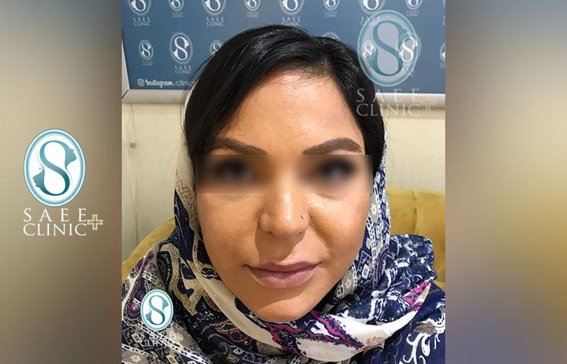 کلینیک پوست و مو ساعی – زاویه سازی صورت – گالری – بعد از عمل – 9