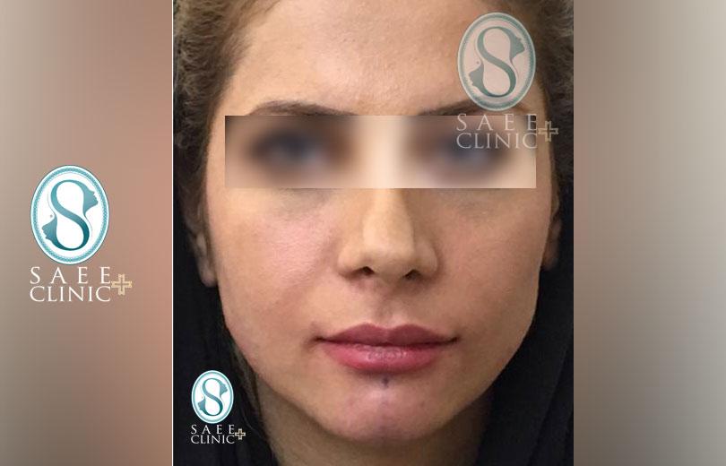 کلینیک پوست و مو ساعی – زاویه سازی صورت – گالری – بعد از عمل – 13