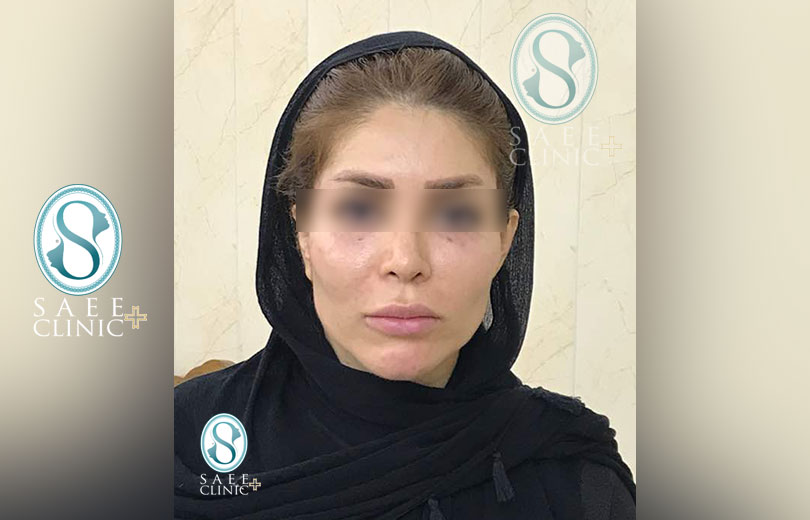 کلینیک پوست و مو ساعی – زاویه سازی صورت – گالری – بعد از عمل – 14