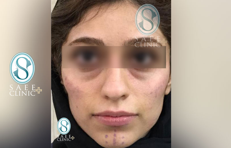 کلینیک پوست و مو ساعی – زاویه سازی صورت – گالری – بعد از عمل – 15