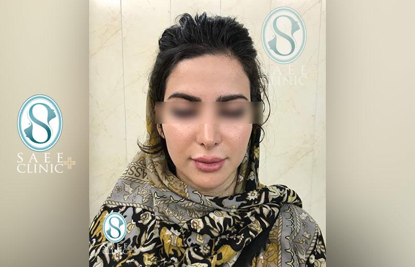 کلینیک پوست و مو ساعی – زاویه سازی صورت – گالری – قبل از عمل – 1