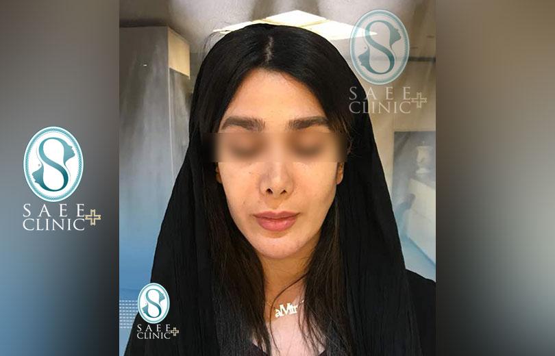 کلینیک پوست و مو ساعی – زاویه سازی صورت – گالری – قبل از عمل – 2