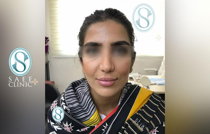 کلینیک پوست و مو ساعی – زاویه سازی صورت – گالری – قبل از عمل – 4