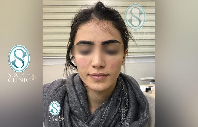 کلینیک پوست و مو ساعی – زاویه سازی صورت – گالری – قبل از عمل – 8