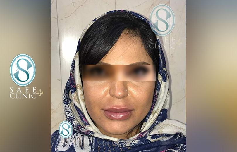 کلینیک پوست و مو ساعی – زاویه سازی صورت – گالری – قبل از عمل – 10