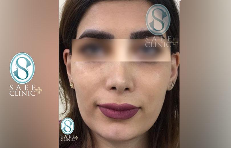 کلینیک پوست و مو ساعی – زاویه سازی صورت – گالری – قبل از عمل – 12