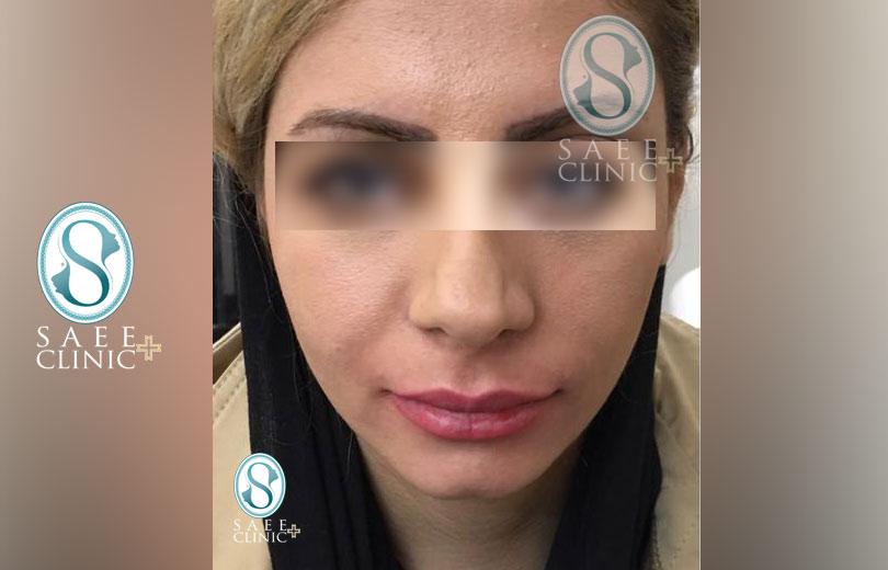 کلینیک پوست و مو ساعی – زاویه سازی صورت – گالری – قبل از عمل – 13