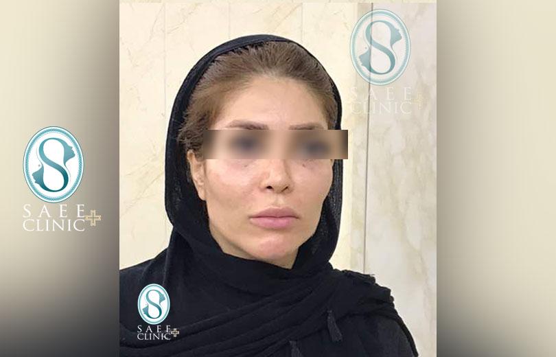 کلینیک پوست و مو ساعی – زاویه سازی صورت – گالری – قبل از عمل – 14