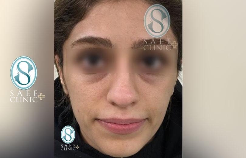 کلینیک پوست و مو ساعی – زاویه سازی صورت – گالری – قبل از عمل – 15