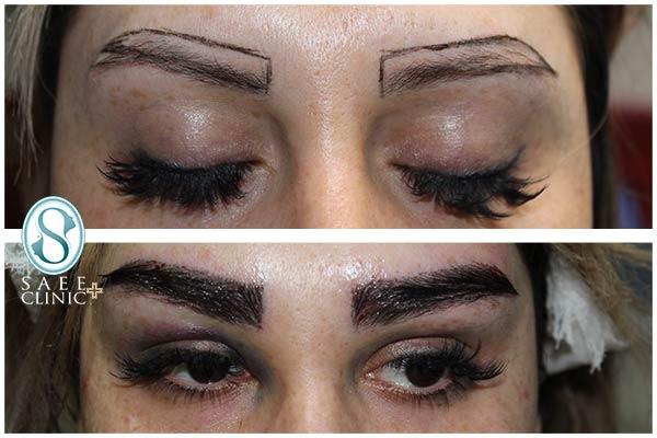 نمونه قبل و بعد از فرآیند کاشت ابرو در کلینیک زیبایی پوست و مو ساعی