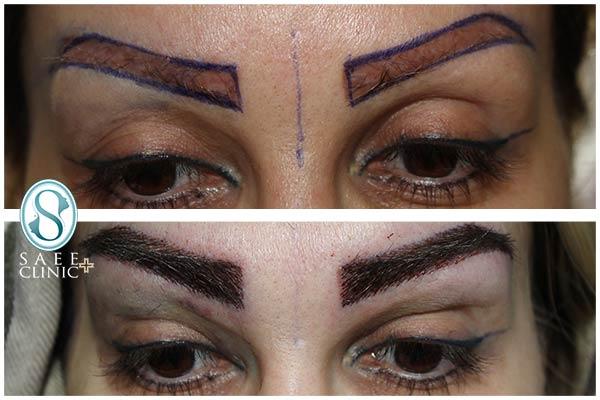 نمونه کاشت ابرو پس از پایان فرآیند در کلینیک زیبایی پوست و مو ساعی