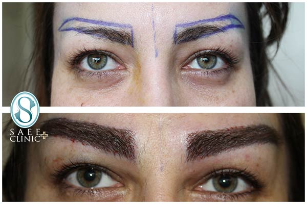 نمونه قبل و بعد از عمل کاشت ابرو در کلینیک زیبایی پوست و مو ساعی