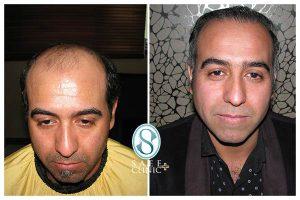 کلینیک ساعی - کاشت مو - 1