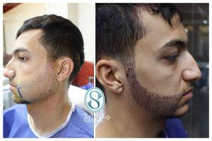 کلینیک ساعی - کاشت مو - 2