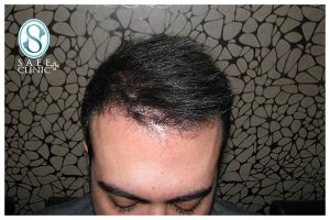 کلینیک ساعی - کاشت مو - 4