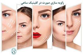 زاویه سازی صورت و کلینیک ساعی