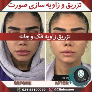 نمونه زاویه سازی صورت با تزریق در کلینیک پوست و مو ساعی