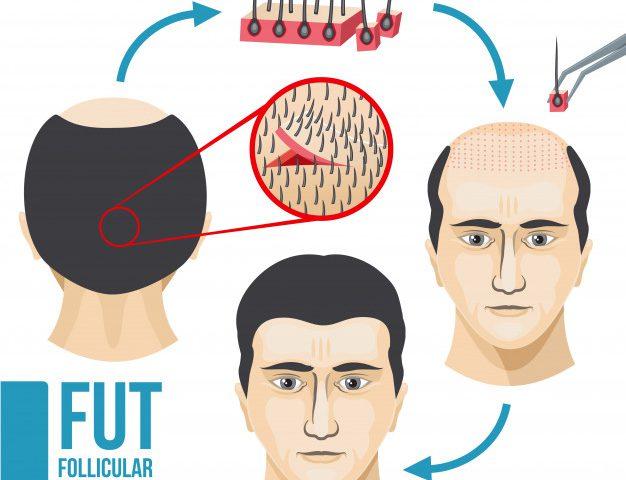 کاشت مو به روش sut کاشت مو به روش fut