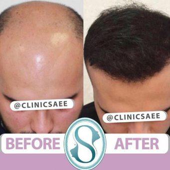 کاشت مو به روش FIT, FUT و FUE